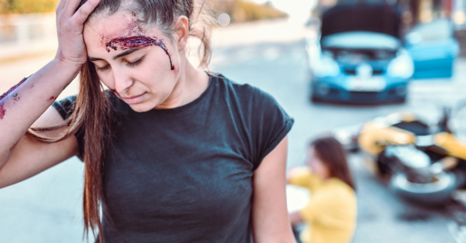 Motorcycle Accident Involving Brain Injury